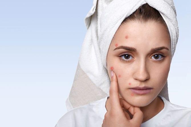 Acneea - tratament naturist cu oțet și hrean