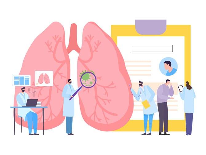 Alte boli pulmonare