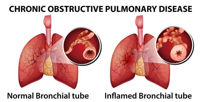 Bronhopneumopatia obstructivă cronică