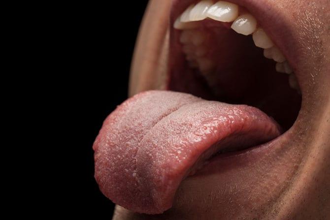 Cancerul limbii