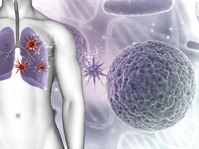 Cancerul plămânului