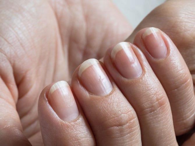 Inflamațiile purulente ale patului unghiilor – unghiile friabile sau accidentate