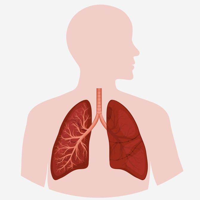 Mecanismele îmbolnăvirii aparatului respirator Fumatul, Alergia, Tulburările de circulație, Inflamația