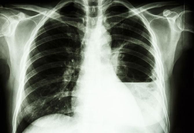 Supurațiile bronhopulmonare - Abcesul pulmonar