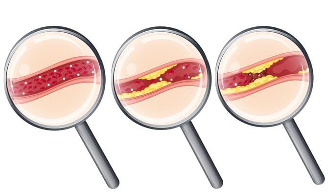 Ateroscleroza coronariană și cardiopatiile ischemice Angorul pectoral, Sindromul intermediar, Infarctul miocardic, Cardiopatiile ischemice nedureroase, Prevenirea și tratarea aterosclerozei