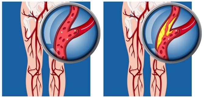 Bolile arterelor periferice
