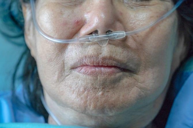 Bolile respiratorii la bătrâni