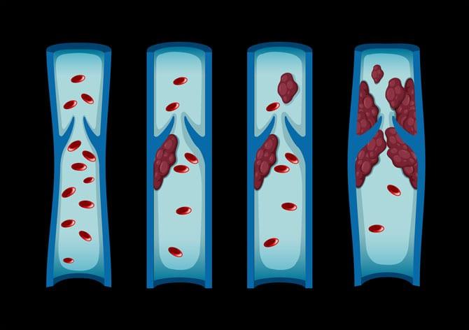 Bolile de coagulare a sângelui