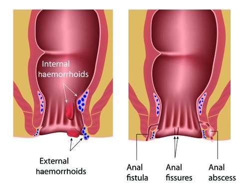 Fistula anală - Bolile anorectale