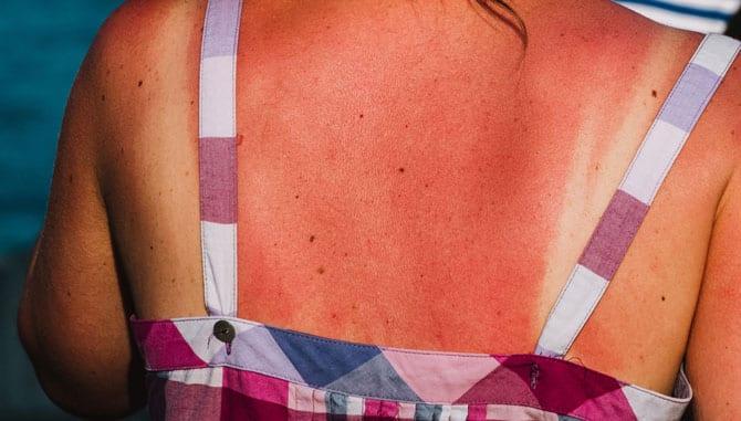 Arsura solară și pielea ta
