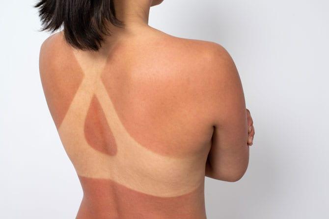 Tratamentul arsurilor solare și remedii casnice